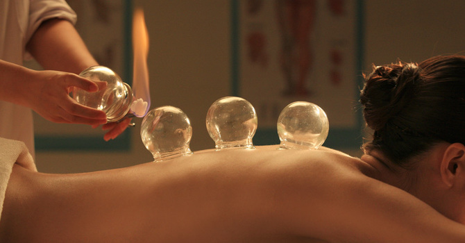 Cupping is now being offered at Rohnert Park Community Acupuncture image